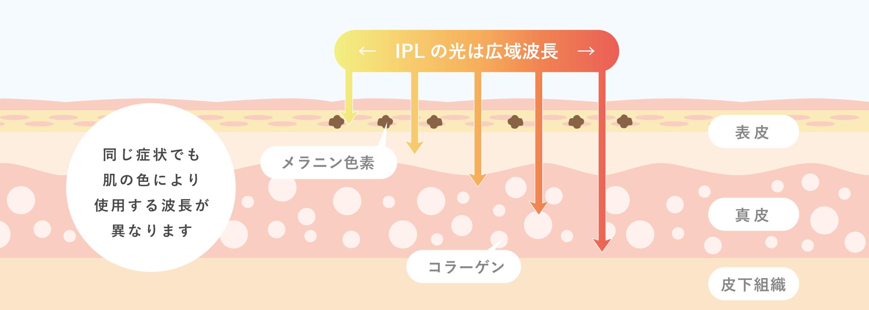 M22(IPL光治療)の効果